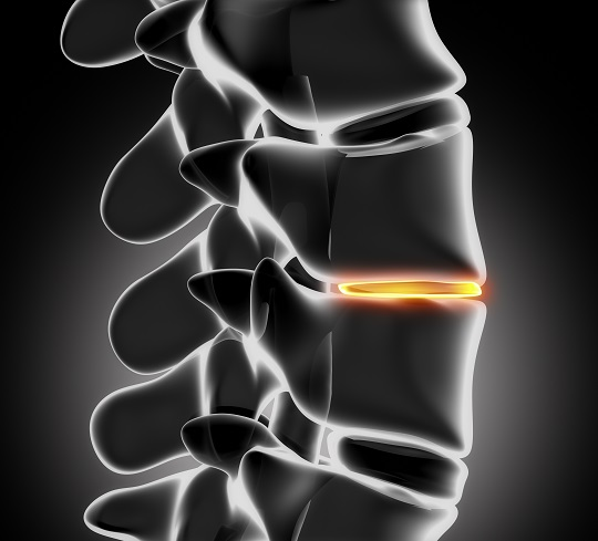 Chiropractic Treatment for Herniated Disc - Chiropractors