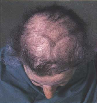 Low Level Laser Therapy Hair Loss - Chiropractors
